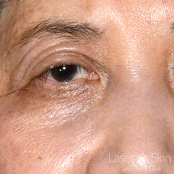 Post Laser treatments to Nevus of Ota