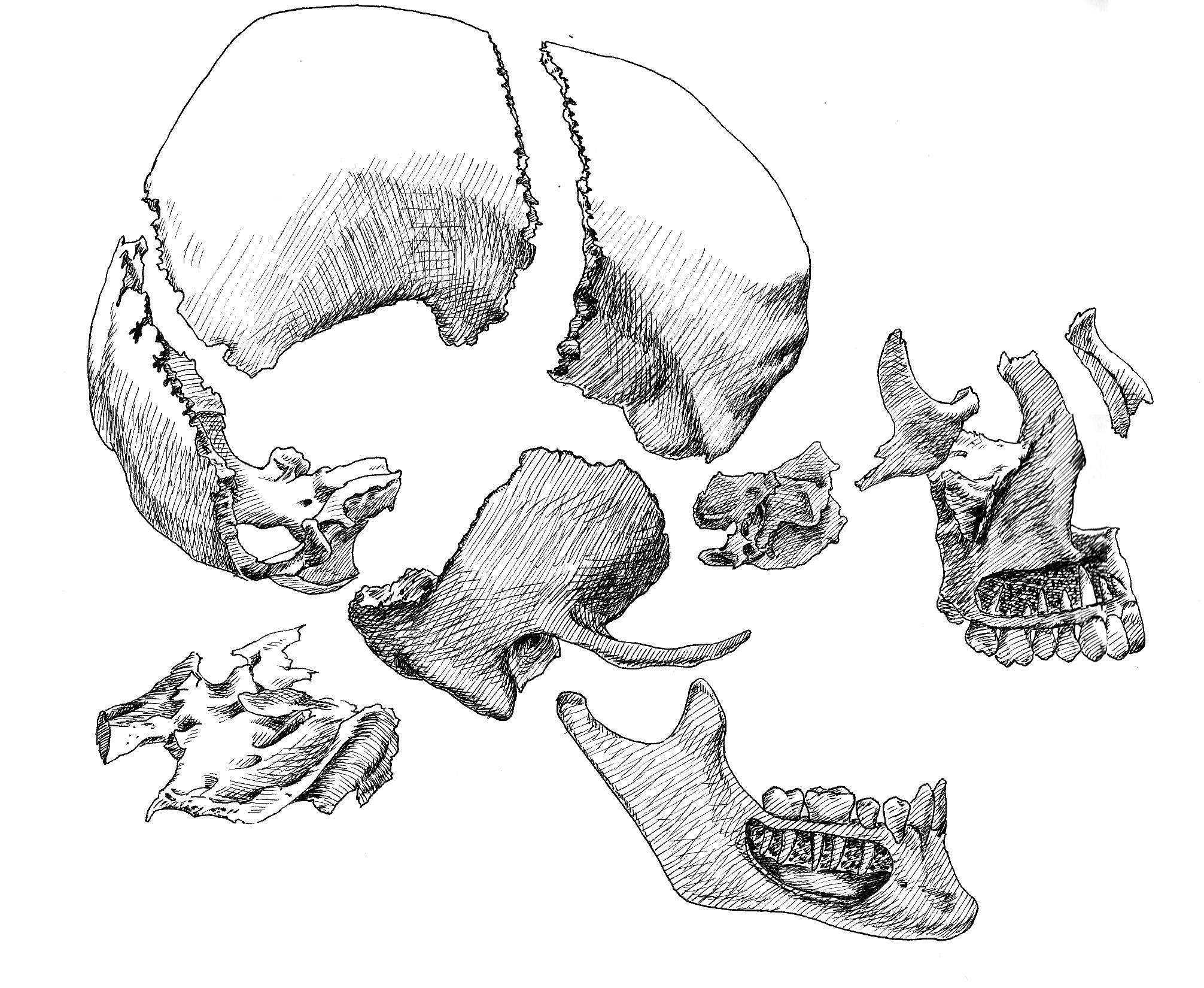 2. exploded skull.jpg