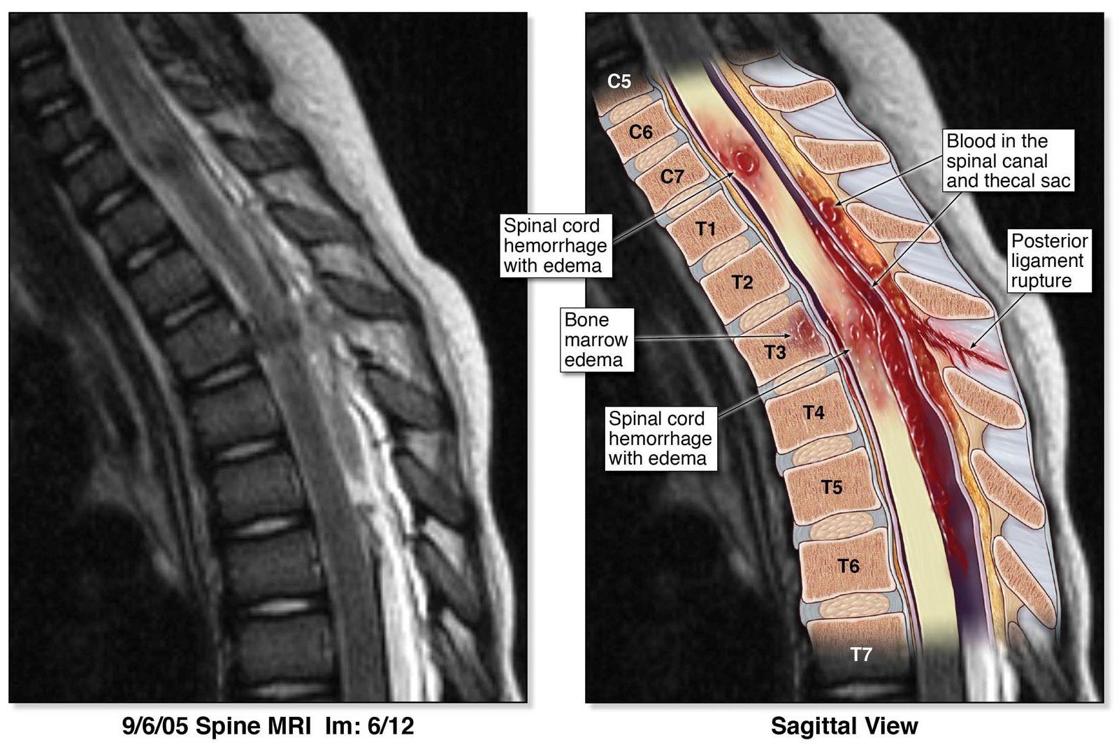 Spine Image 01.jpg