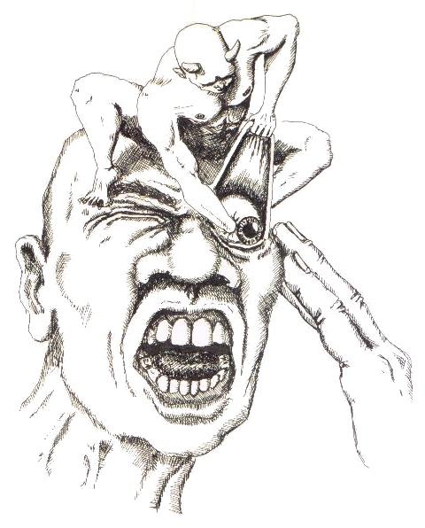 The Cluster Headache image by JD Fletcher via Wikimedia Commons  Source: https://www.ichd-3.org/