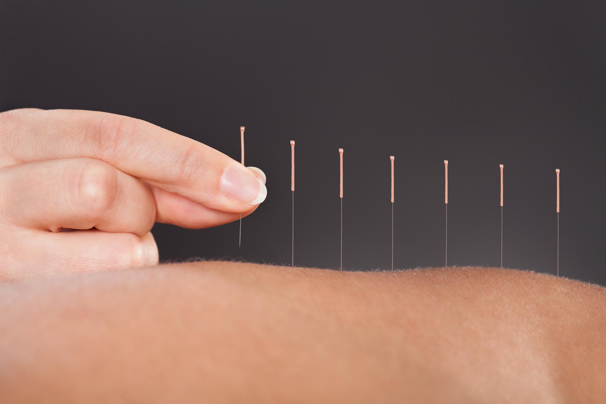 acupuncture pic.jpg