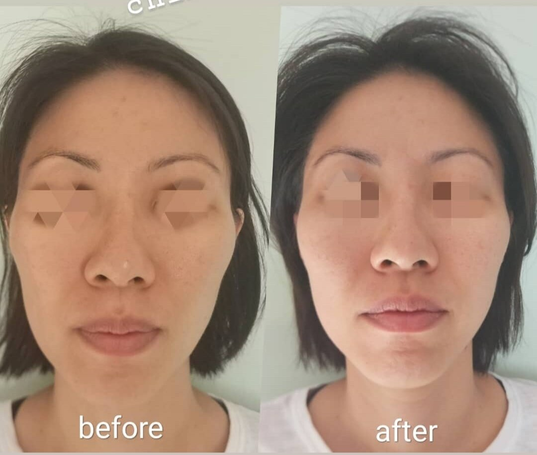 Results after 1 Facial Osteopathic Adjustment