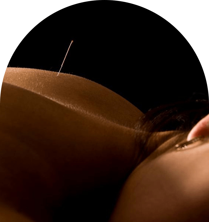 Acupuncture - Acupuncture is a component of the health care system of China that can be traced back at least 2,500 years. In that time a wealth of knowledge has accumulated in the practice of acupuncture. Acupuncture is based on the traditional theory that there are patterns of energy flow through the body. Disruptions of this energy flow can impact your mental and physical health. Using specific diagnostic techniques, the acupuncturist chooses and stimulates certain acupuncture points to help the body's ability to resist or overcome illnesses. The World Health Organization reviewed and analyzed a multitude of studies investigating the efficacy of acupuncture, and concluded that there is a therapeutic effect of acupuncture for almost 100 different diseases, ailments or conditions.At Nurture we use thin, sterile, disposable acupuncture needles to help our patients using this ancient Chinese medicine. Our patients find their sessions to be pleasant and restorative. We use acupuncture based on traditional Chinese medical theory as well as current research, since we believe that the the 2,500 years of informal research along with the scientific research done in the last 50 years allows us to help our patients most effectively.We also include adjunctive traditional therapies with our acupuncture treatments. Sometimes cupping, gua sha or moxa is used in the treatment or managements of certain conditions or disorders.
