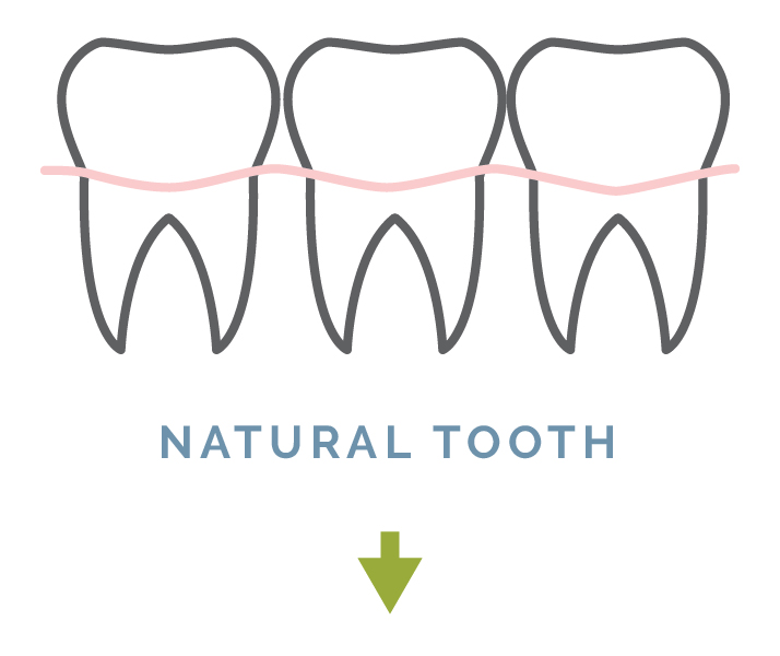 natural_tooth-01.jpg