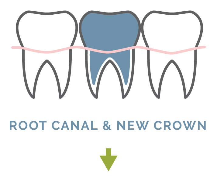 root_canal-01.jpg