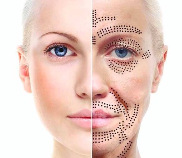 skin concerns we treat - Skin Tightening & Anti-AgeingCheek lift — Crows feet — Eye bag reduction — Forehead lines — Frown lines — Jaw lift — Loose belly skin — Marionette lines — Neck lift — Smile lines — Upper eyelid lift — Vertical lip linesSkin Abnormalities & RestorationAcne & scarring — Blackheads/ whiteheads — Cherry angiomas — Cholesterol deposits — Enlarged/ clogged pores — Mole & skin tag removal — Pigmentation — Rosacea — Spider veins — Stretch marks — Sun damage/ sun spots