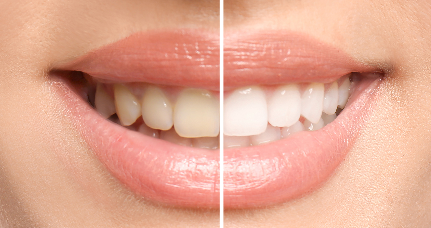 Trost Dental Can Create The Smile of Your Dreams