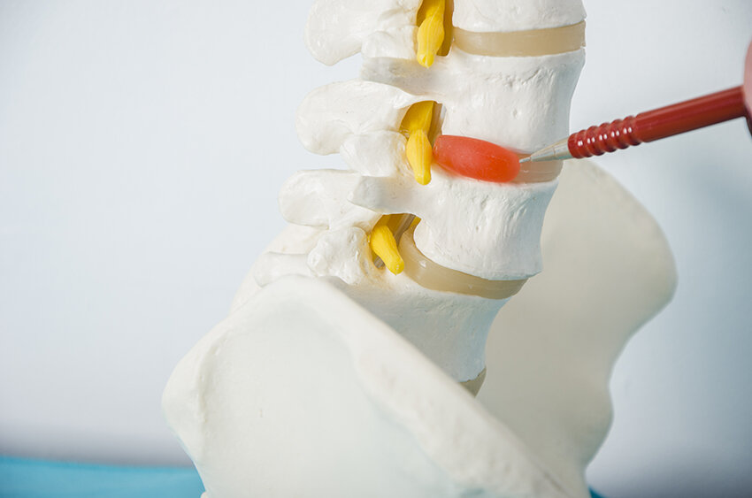 slipped disc and chiropractic.jpg