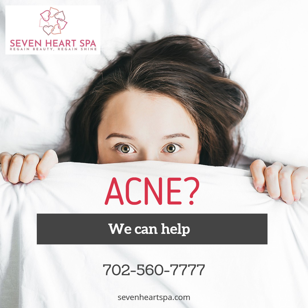 Acne and Acne Scar Treatment in Las Vegas.