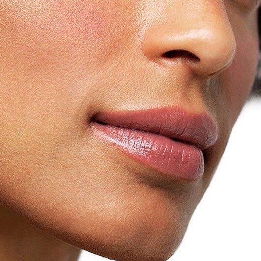 botox lip flip West Hollywood