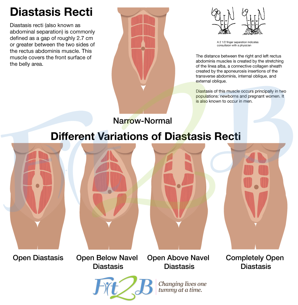 Photo source:  https://fit2b.us/how-to-check-for-diastasis-hd/