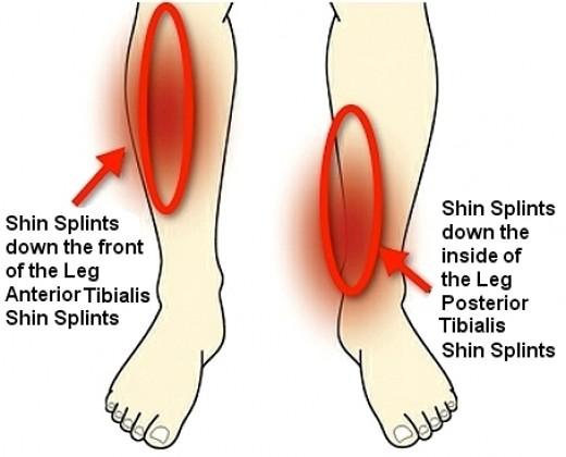 shin splints.png