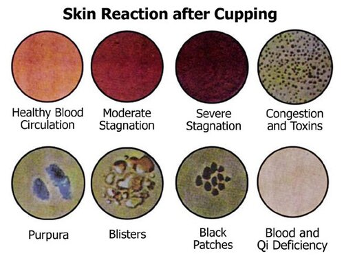 Cupping Meaning
