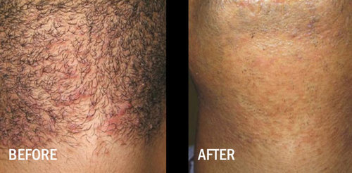 Laser Hair Removal Okc 25 Off Aug Full Body Laser Hair