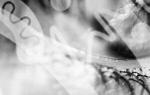 Normalisierung der Tränenfilmdicke - Insgesamt 80 % Behandlungszufriedenheit.MEHR →