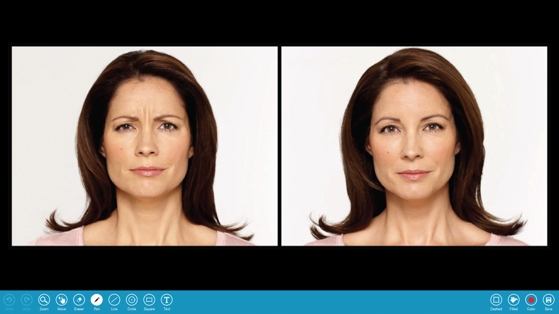 Before & After Galleries - Doctors can easily transform their Before and After Galleries into a digital format to discuss with their patients. Doctors can communicate possible outcomes and illustrate how they achieved desired results.