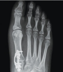 Lapiplasty® 3D Bunion Correction™  Alignment is restored & unstable joint is permanently secured