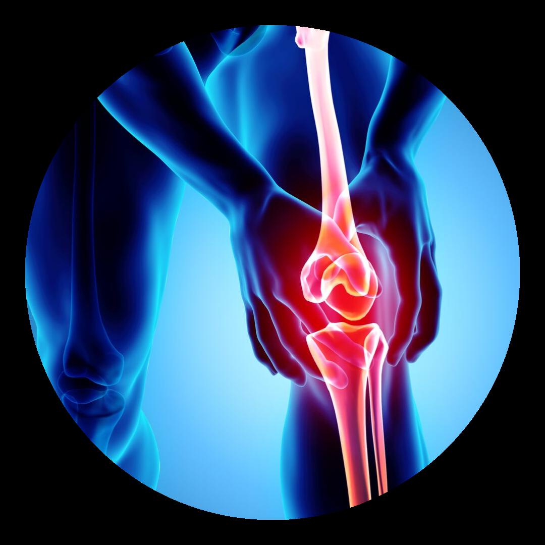Knee Pain boerne