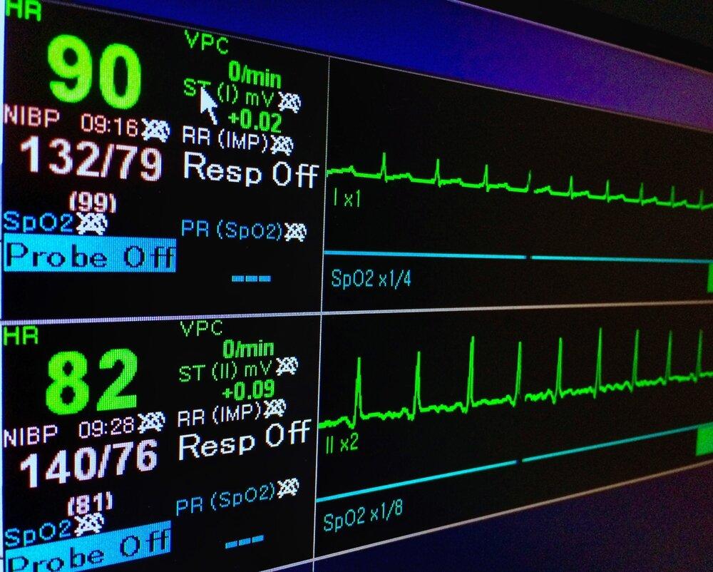 EKG on Screen.jpg