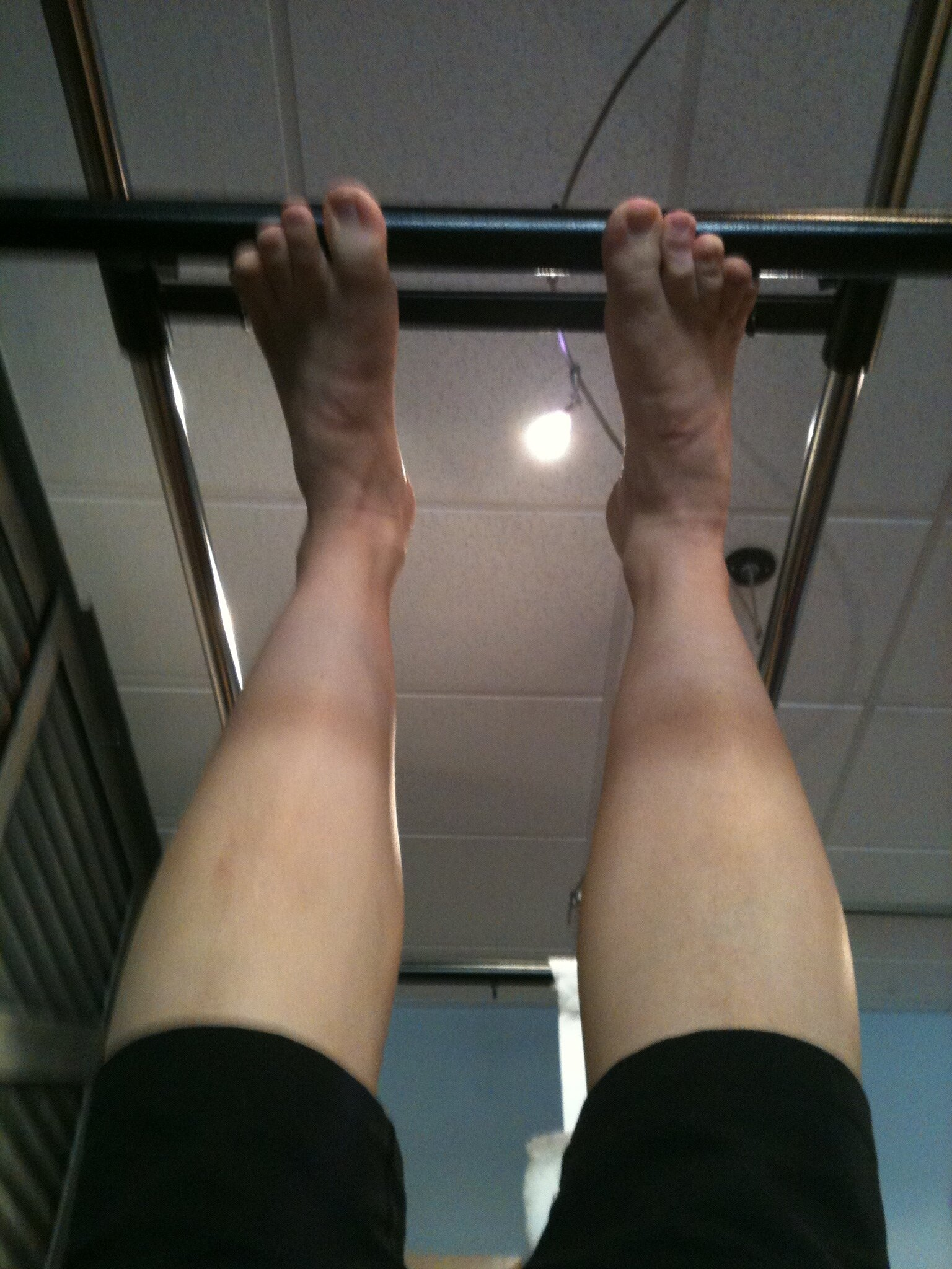 Right ankle misalignment