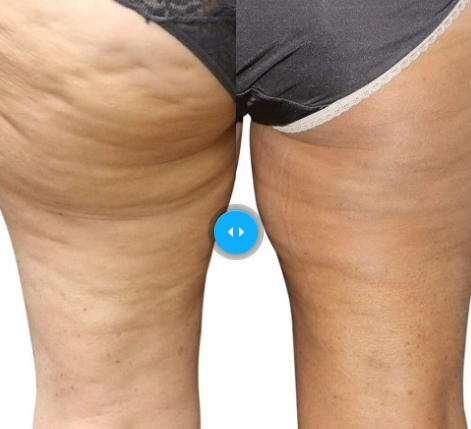 Cellulite Treatment Aesthetic Solutions