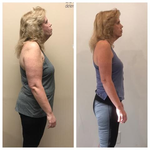 """When I first started working with Rob, I was looking at a 3rd back surgery. I was in constant pain, and on daily medication. I had back and hip pain and could barely move. I was overweight but couldn't exercise because of the pain.    After working with Rob for a few months I am pain free for the first time in 15 years. Using his meal plan and exercise program I have lost over 40 lbs and I'm doing more at the gym than I ever thought was possible. Thanks to his constant support and patience he has gotten me close to my goals. I highly recommend Rob to anyone with any kind of pain issues, he is definitely good at what he does.""  - Brenda"