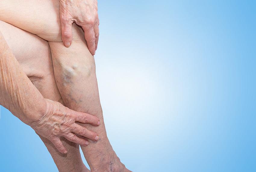 preparate vasculare varicoseza