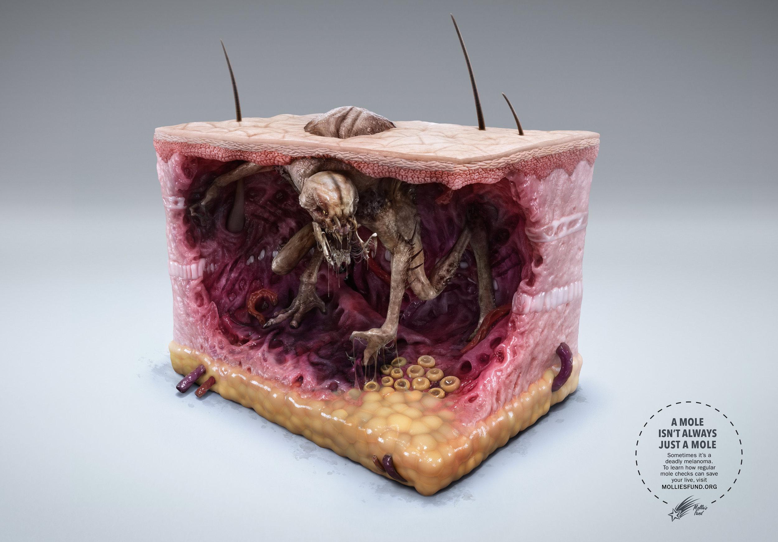 Melanoma+Monster+-+Alien.jpg