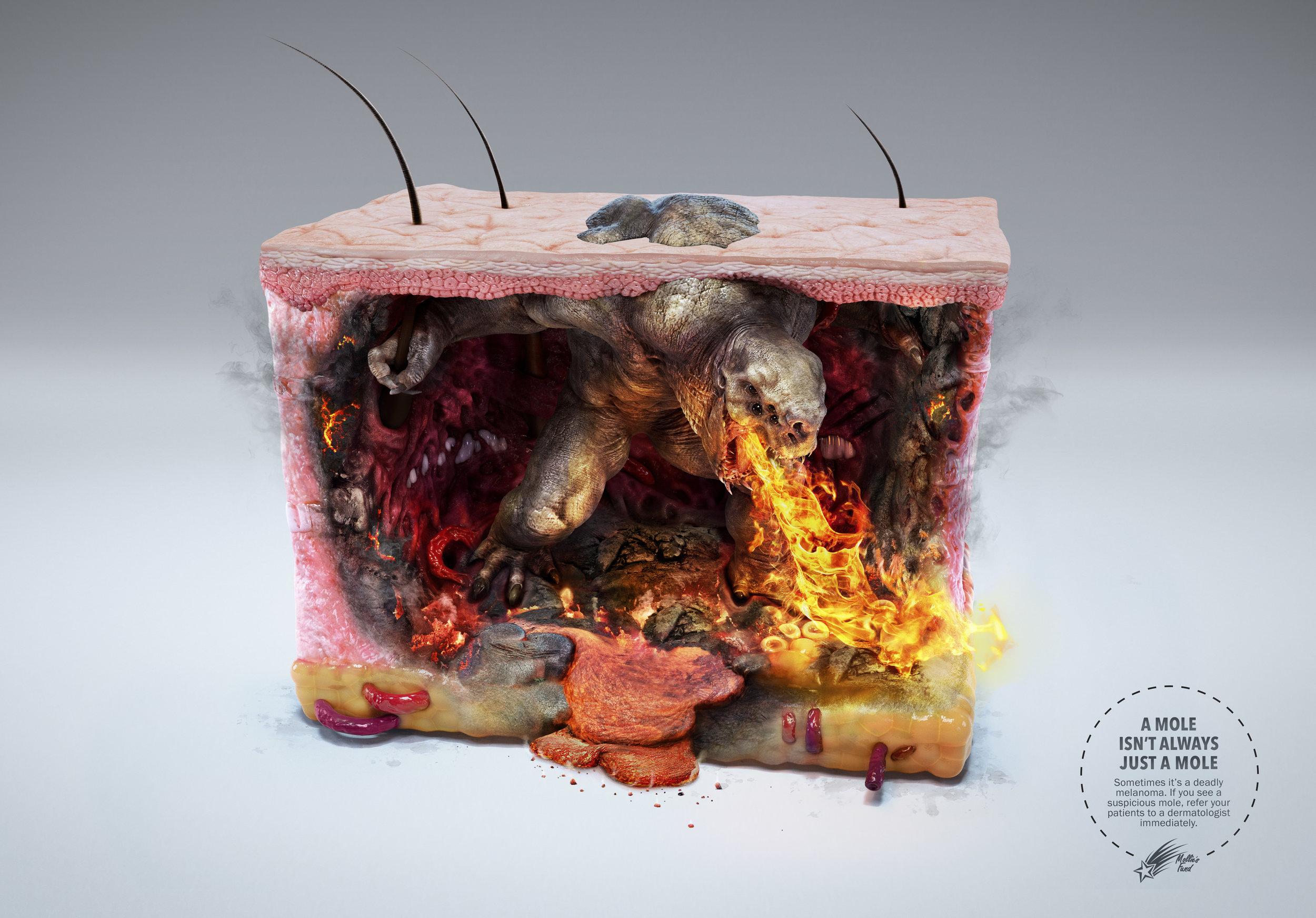 Melanoma+Monster+-+Volcano.jpg