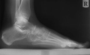 FOZ Networks Provides Superior Direct Radiography Services to Podiatrists