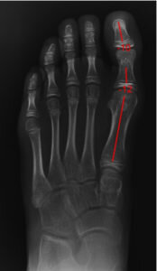 podiatrist uses digital x-ray of foot to draw angles