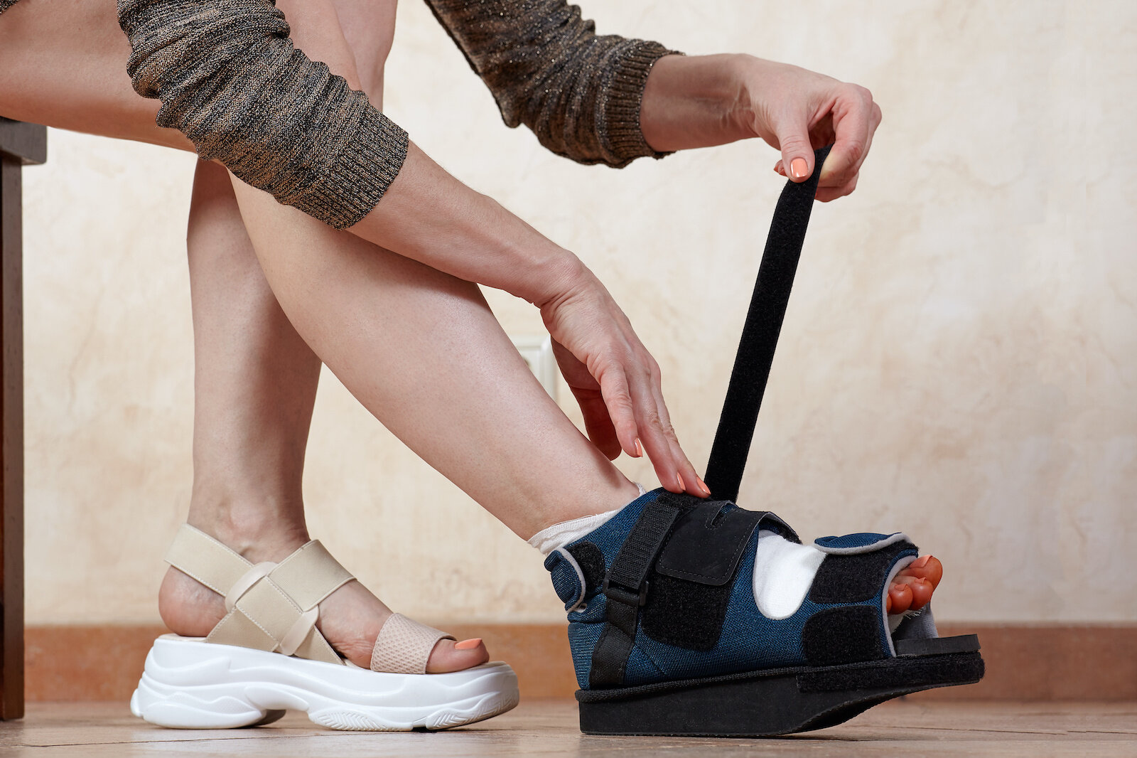 Bunion Surgery Recovery: What To Expect and How To Prepare — Snug Safety