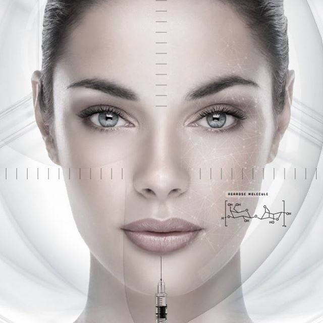 Introducing Biofillers! A revolutionary treatment for facial rejuvenation using your own blood to create a serum with our apag machine. #chemicalfree