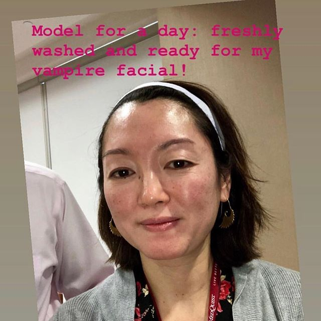 Repost from @bioage_health.  Vampire Facelift performed by Dr. Nacouzi. Check out the before and after. We're in love 😍😍😍 #prptraining #drnacouzi #botoxtraining #fillertraining #vampirefacialtraining #raleigh #medspa #doctor #drnacouzi #drreynolds #cellularmedicineassociation #worldlinkmedical  #worldlinkmedicalconference