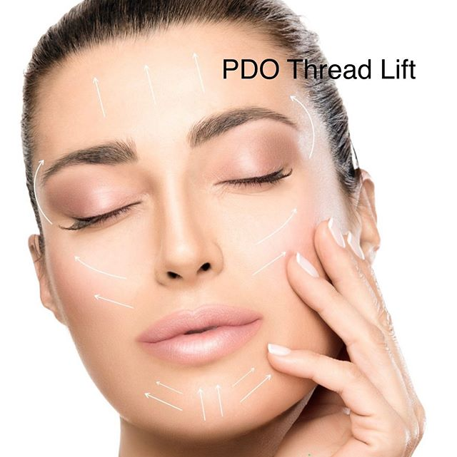 Now offering PDO FDA cleared Thread lift, a mini facelift in just an hour! Dr. Nacouzi is certified and trained in this trending procedure. Email raleighbotoxandlaser@gmail.com or call 9193327568 to schedule a consultation. #pdothreadlift