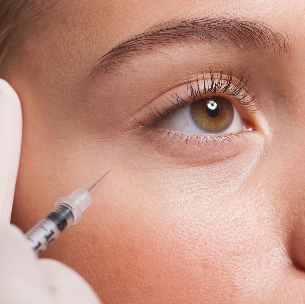 close-up-of-woman-receiving-botox-injection-under-royalty-free-image-165129256-1549304785.jpg