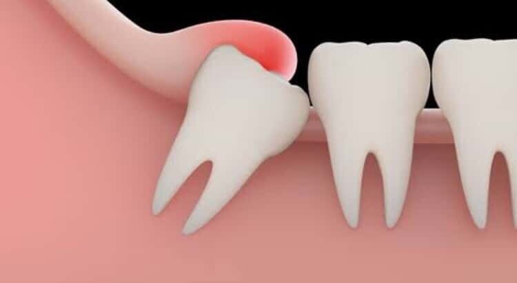 No pain teeth wisdom 10 signs