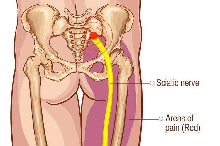 Q Is sciatic nerve pain something I just have to put up with? - Somerville-Cambridge Elder Services (SCES)