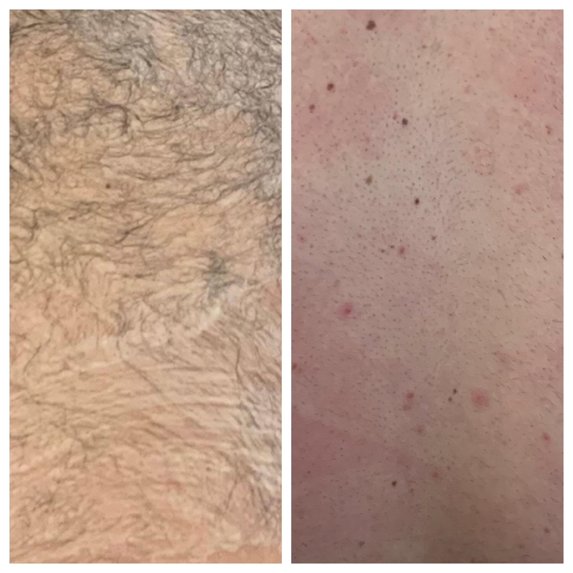 Laser Hair Removal Columbia Sc The Art Of Aesthetics Med Spa Llc