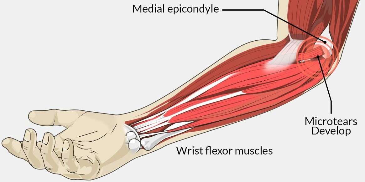 golfers elbow.jpg