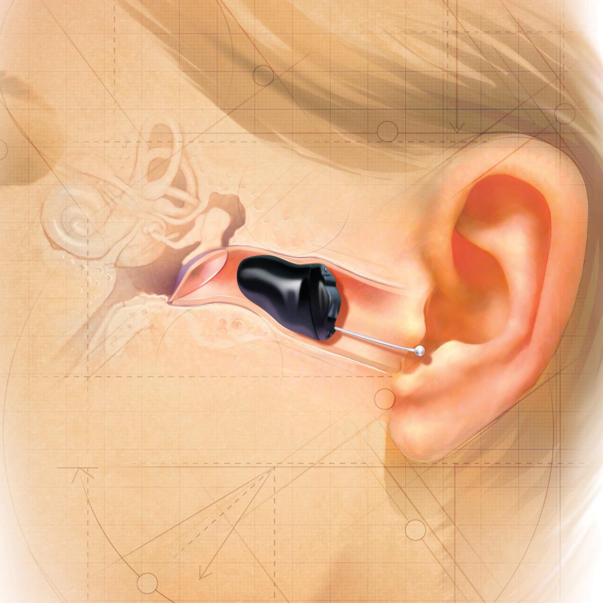 2010-IIC-CUTAWAY-EAR_WEB-1200x1200.jpg