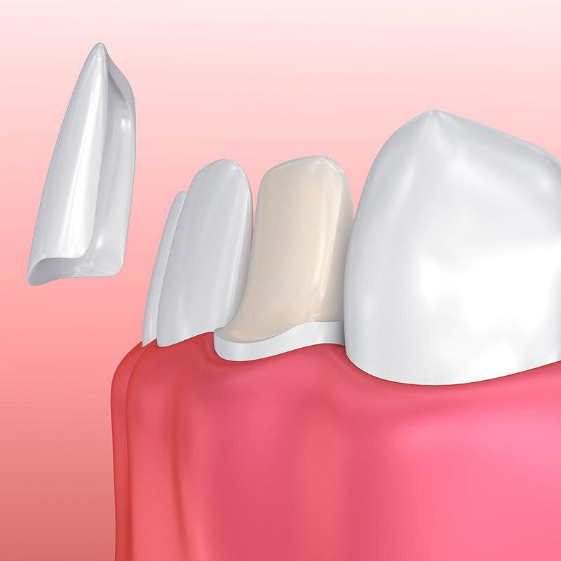 Zahnfarbe häufigste Restaurative Versorgung
