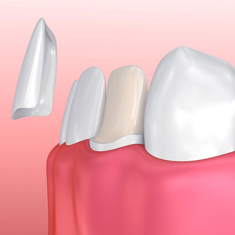 Wurzelbehandlung nach zahn verfärbt sich grau Patientenfrage: Zahnverfärbung