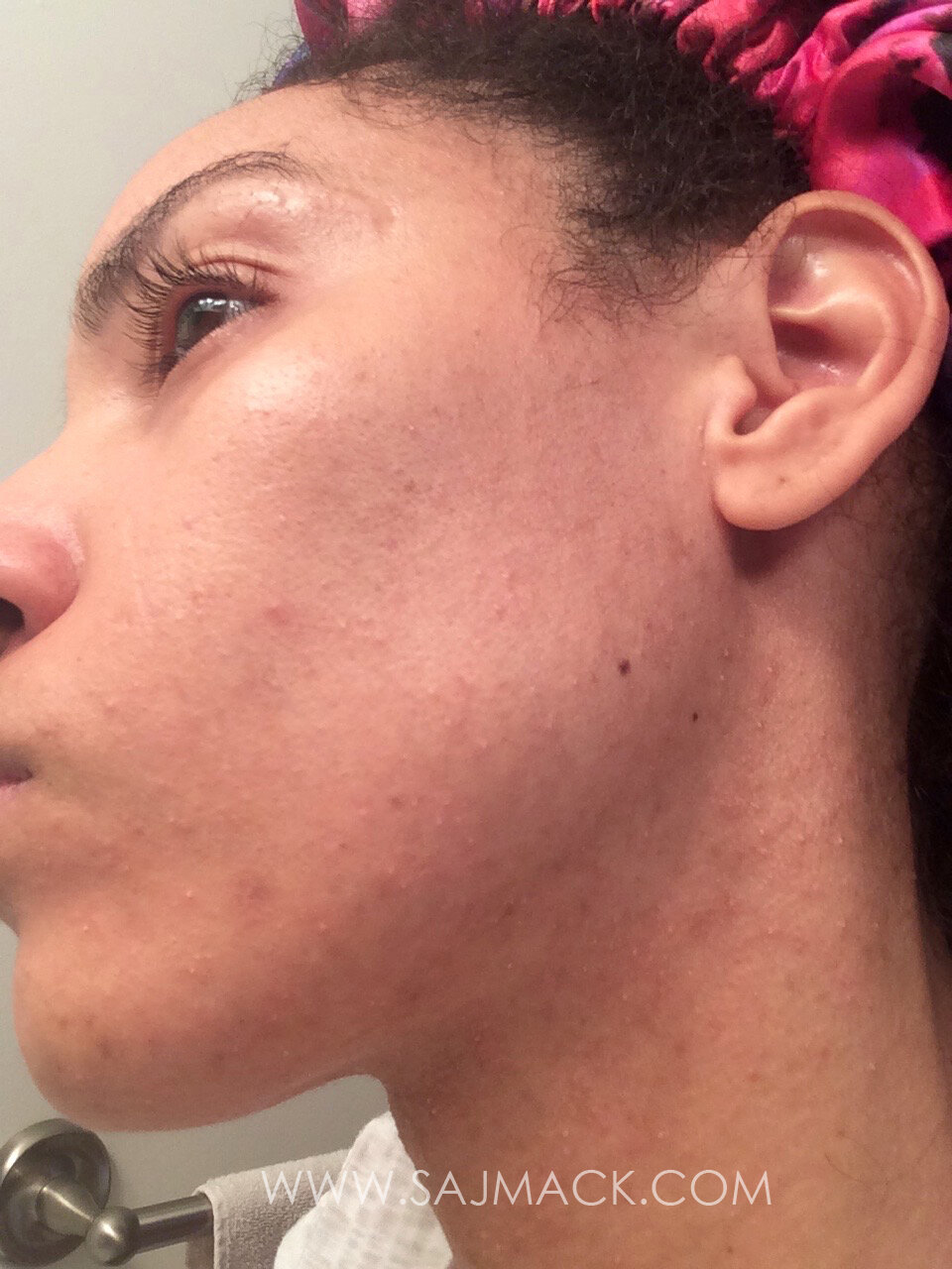 How I Cured My Fungal Acne Skincarewithsaj Skincare And Beauty Tips To Live By