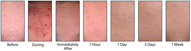 secuencia morpheus acné.png