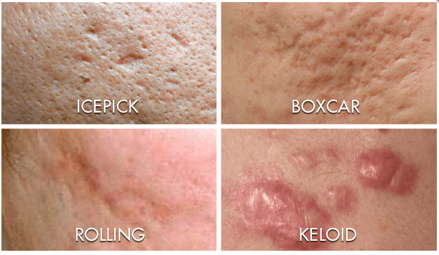 Acne Scarring Pih Pie Differences Causes Treatments Babe Beauty