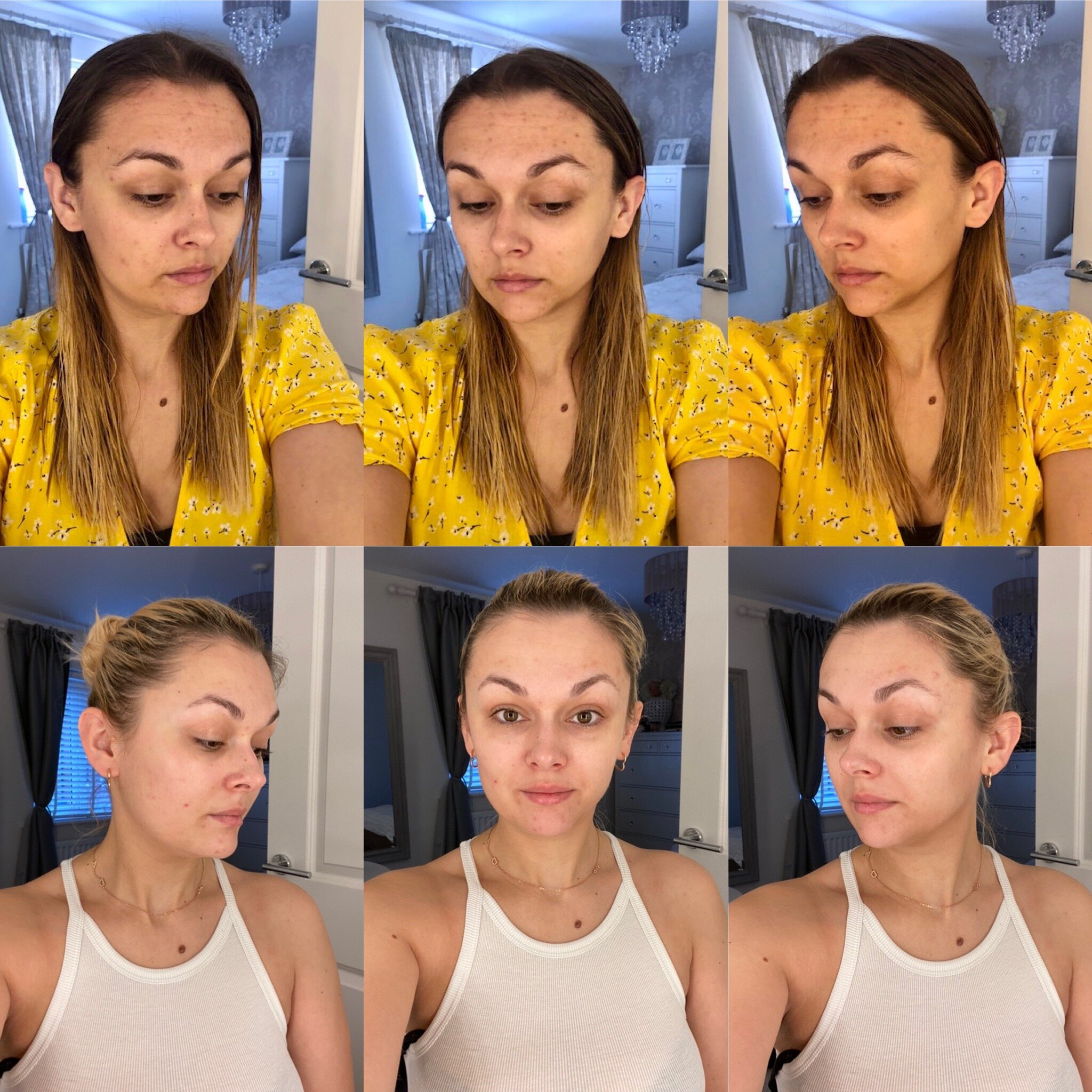 Skincare Routine, Regime, Before and After, Skin Niacinamide, Products