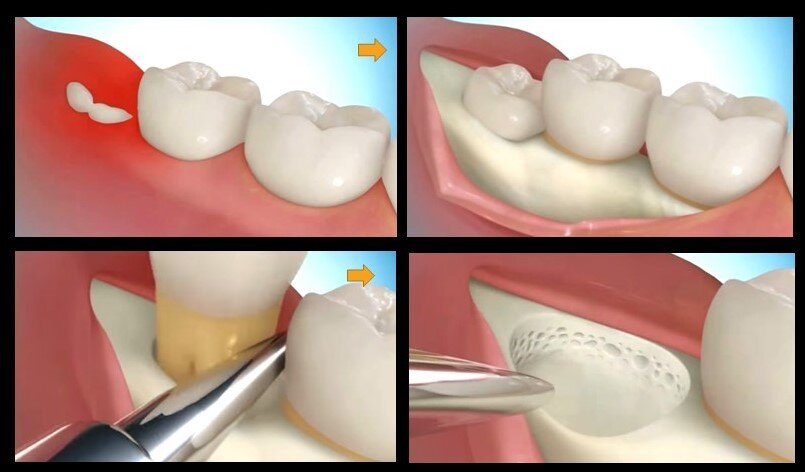 Wisdom tooth surgery extraction