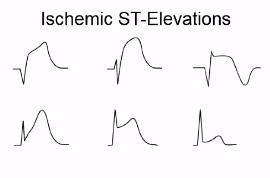 ST elevation is hallmark of disorder - Non-ischemic ST elevation: Early repolarization, LV hypertrophy, LBBB, peri-myocarditis, hyperkalemia, Brugada, ARVD, WPW, takotsubo's.