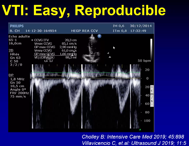 POCUS 5 chamber view can demonstrate VTI in a validated, reproducible manner as a surrogate marker for cardiac output.
